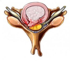 dyskopatia; przepuklina kręgosłupa