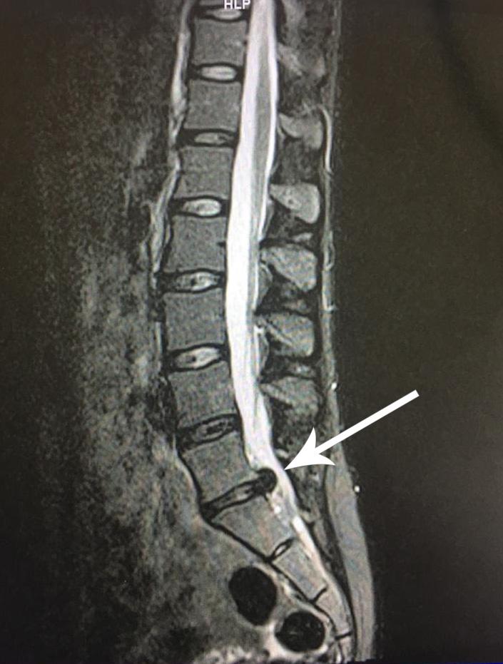 dyskopatia - rezonans wypadnięcia dysku. Kręgosłup odcinek lędzwiowy